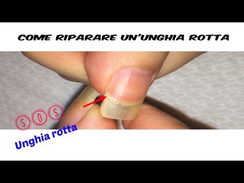 Trattamento di un fungo su un dito del piede al bambino