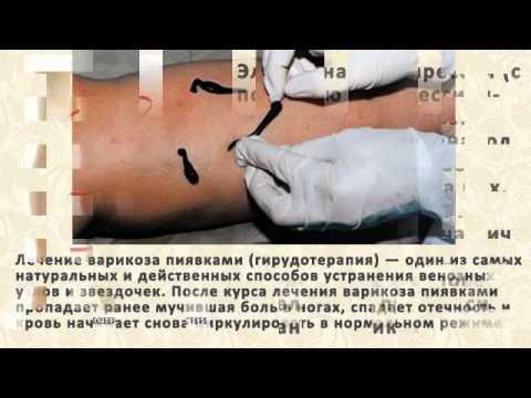 Sekinaev ลาดิเมียร์เอฟ phlebologist