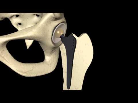Ból pleców podczas stania