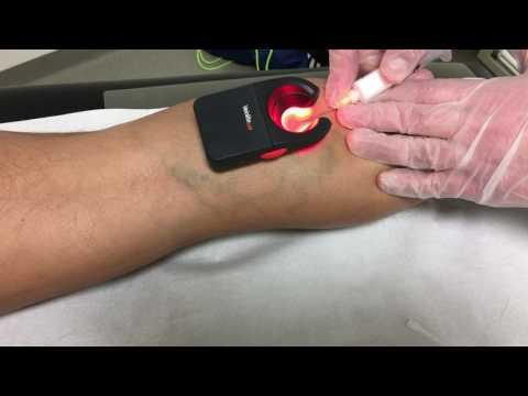 Wie die Hand von der Schnürbinde bei der Thrombose zu verbinden
