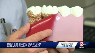Local dentist explains why vaping is dangerous for teeth