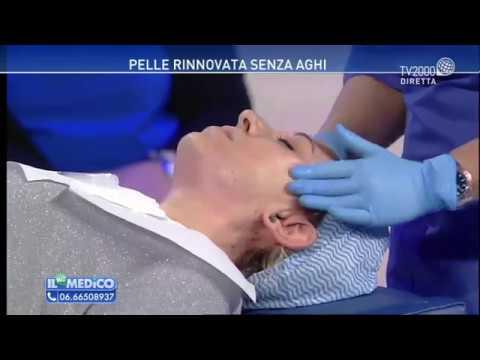 Quello che aiuta a psoriasi di una parte pelosa della testa