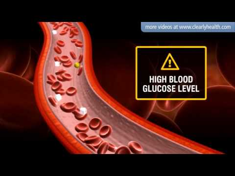 Jucken in den Anus bei Diabetes