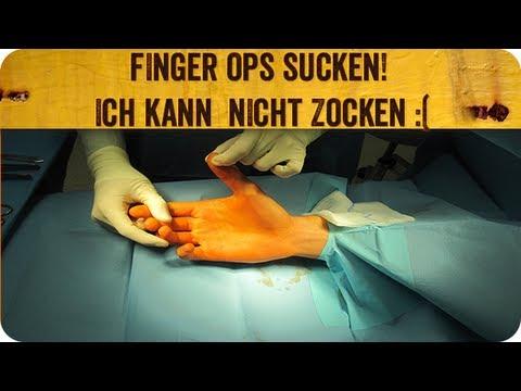Die Kerne auf den Füssen der Beine die Behandlung