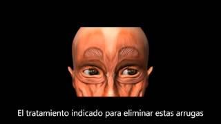 Clinica CIME - Botox - Clínica CIME