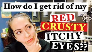 Blepharitis | 2 Easy steps to banish red, crusty, itchy eyes | The Eye Surgeon
