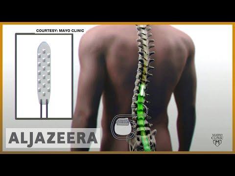 🇺🇸 New implant gives hope to the paralyzed | Al Jazeera English