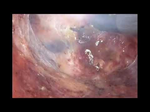 Papillary lesion procedure