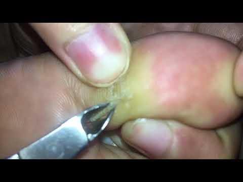 Oak aw-aw fungus paa ng paggamot
