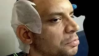 Proesthe Hair Transplant Center
