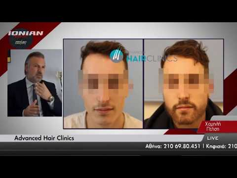 Best Hair Transplant Clinic of the Year | Athens