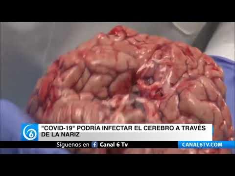 COVID-19 podría infectar el cerebro a través de la nariz