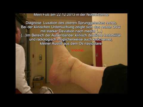 Wund Unterbauch und Rücken und Durchfall