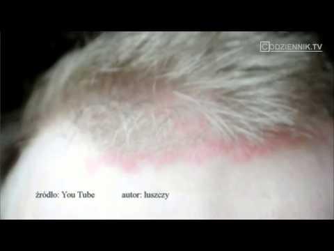 Olejki eteryczne z egzema i zapalenie skóry
