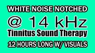 14000 hz tinnitus - Thủ thuật máy tính - Chia sẽ kinh nghiệm sử dụng