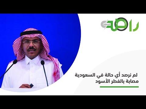 متحدث الصحة: لم نرصد أي حالة في السعودية مصابة بالفطر الأسود