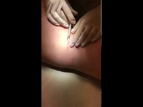 Prostatilen sveces ar cinka sastāvu