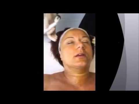 Psoriasi su un corpo uno stadio iniziale di una fotografia come occhiate