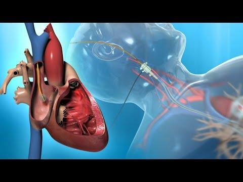 Wie unter dem hypertensive mähen