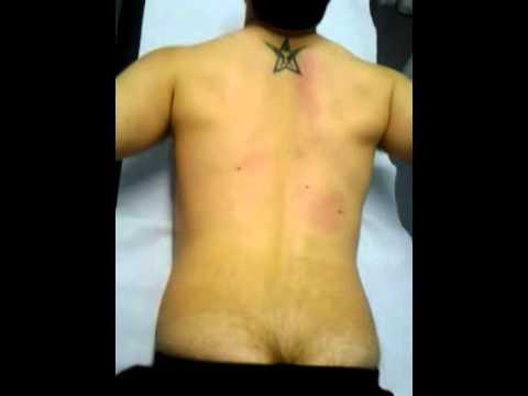 Video di esercizi per unernia del rachide cervicale