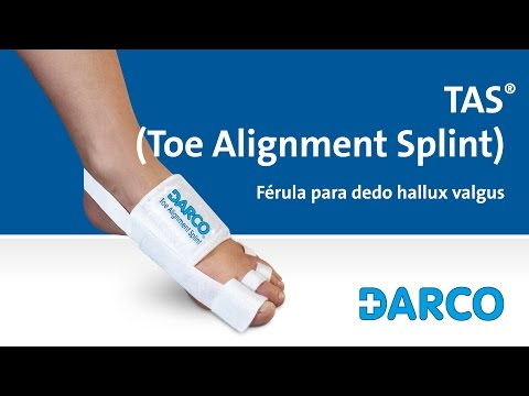 Chirurgia di piede valgus