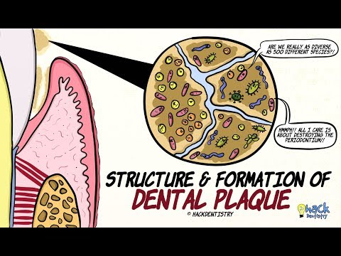 Dental Plaque: Structure and Formation