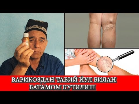 Unde poți vindeca varicele