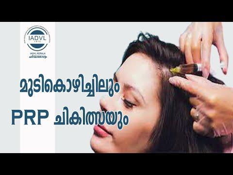 PRP (Platelet Rich Plasma) treatment in Hair fall