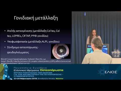 Λαμπροπούλου Αδαμίδου Κ. - Οστεοπόρωση σε νέους ενήλικες Διάγνωση και αντιμετώπιση