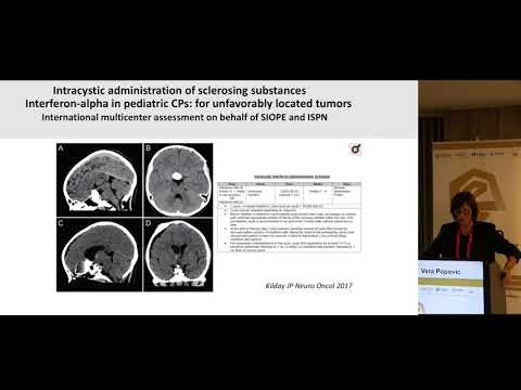 Vera Popovic - The diagnosis, treatment, follow-up, and prognosis of craniopharyngioma patients