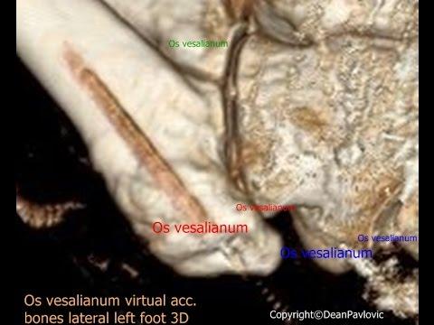 Infiammazione delle articolazioni delle ossa
