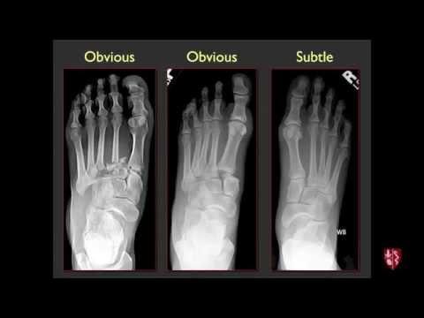 Ízületi sérülések artroszkópos kezelése