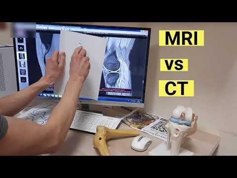 Что лучше выбрать КТ или МРТ? Коленный сустав