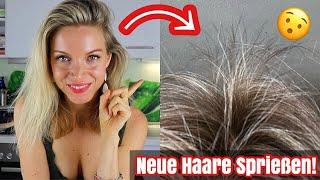 Warum plötzlich viele, neue Haare bei mir sprießen! Haarwachstum stimulieren mit dieser Superfoods