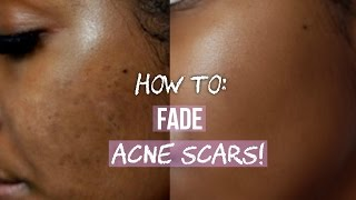 HOW TO GET RID OF ACNE SCARS ON FACE & BODY!