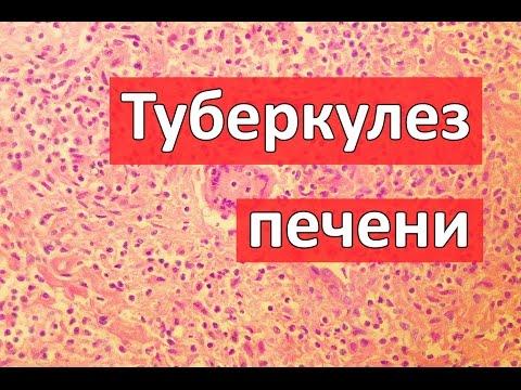 Что означает пцр положительный при гепатите с