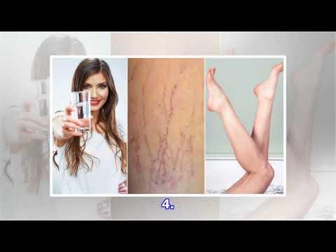Le traitement de la varicosité sur les pieds par lortie
