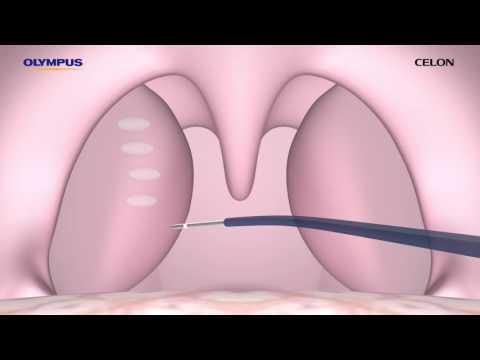 Neues in der Behandlung von Wirbelsäule und der Gelenke