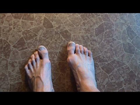 Шишка на пальце ноги удаление