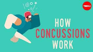 Think you know about Concussion? - From rugby, to football and cycling, here are some things you may
