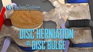 Disc Herniation vs Disc Bulge