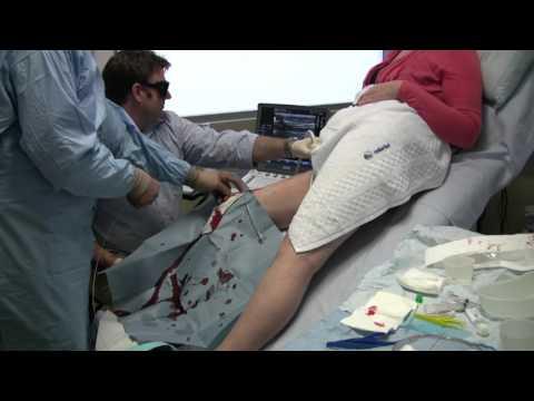 La varicosité sur les pieds le traitement de la conséquence