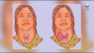 Diálogos en confianza (Salud) - Enfermedades en la función de la tiroides