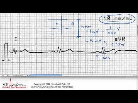 Interpretacja EKG - Określanie Skali Czasowej, 6-2
