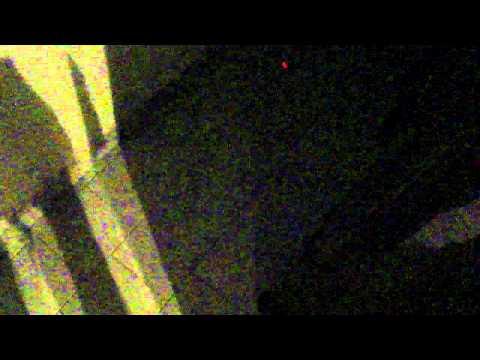 Trattamento laser di pigmentazione della persona