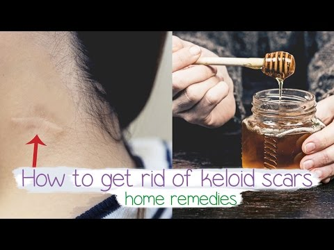 Video how to get rid of keloid scars Fast | Home remedy ????