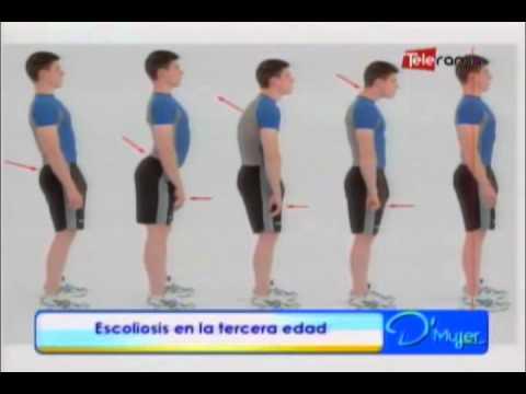 Tratamiento farmacológico de la inflamación de las articulaciones de la rodilla