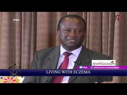 PWJK: Christine Matama shares her story about living with Eczema