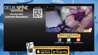 Watch LIVE Spinal Fusion: TLIF L5-S1 Laminectomy/Discectomy - Q&A With Dr. Deukmedjian