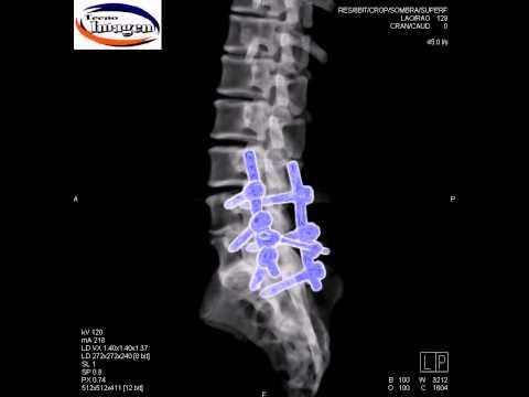 Fármacos para el tratamiento de la columna vertebral y las articulaciones